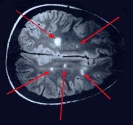 champix and crohn's disease